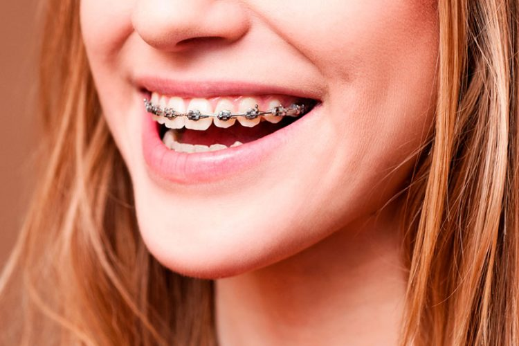 braces treatment in South Delhi