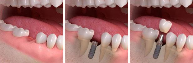 dental implants in South Delhi